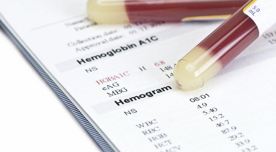 Kan Tahlili Hemoglobin (HGB) Nedir?